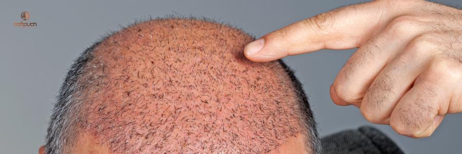 El verano, momento perfecto para hacerse un implante de pelo